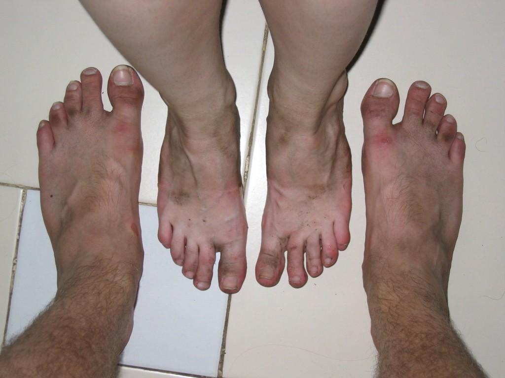Jalat saivat hieman runtua sandaaleilla kävellessä
