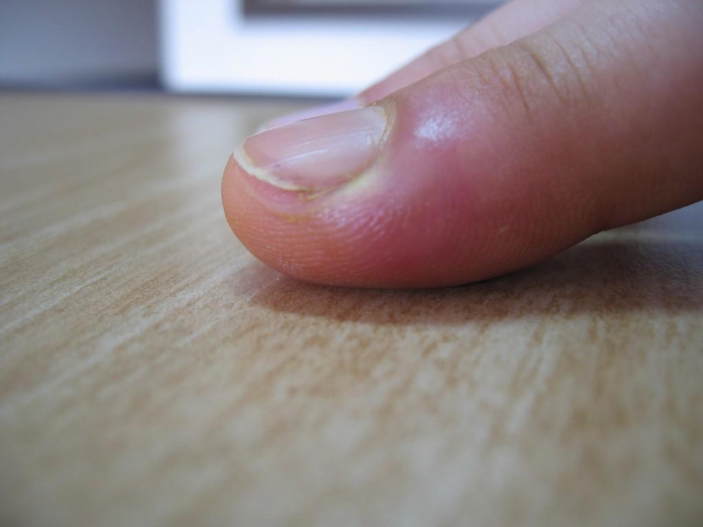 Ja tässä se tulehtunut sormi